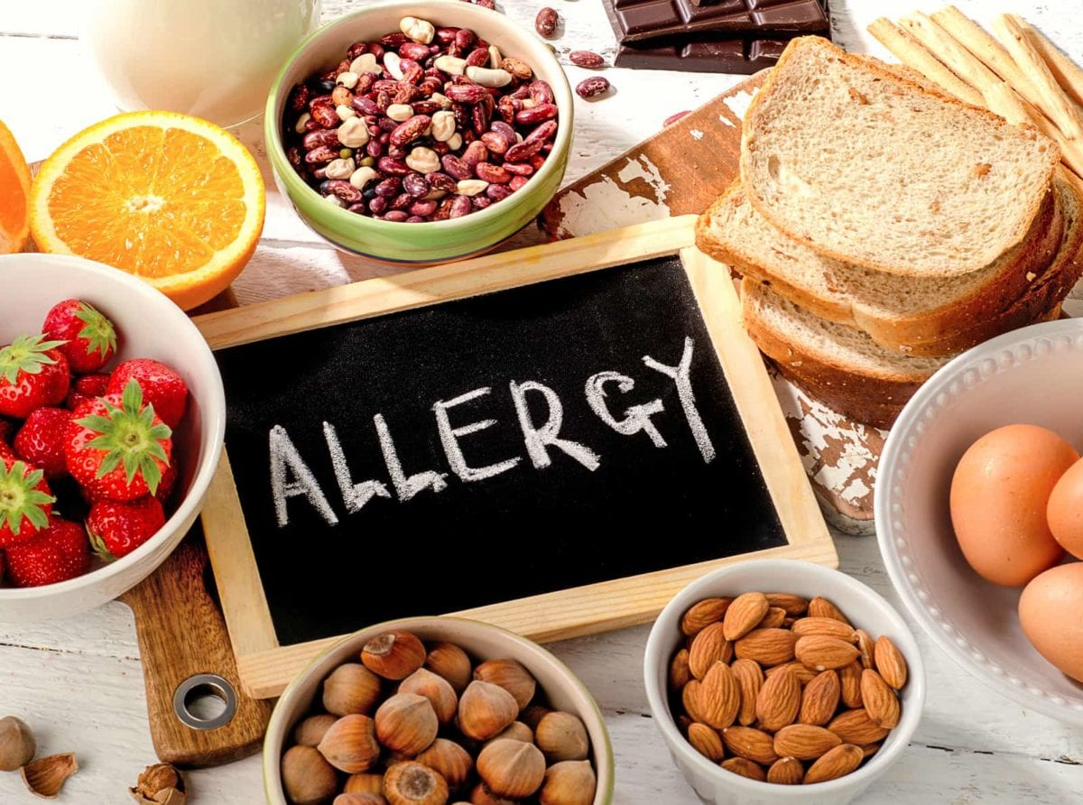 Información sobre Alérgenos en restaurantes